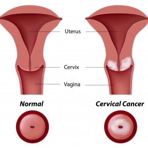 cervical dysplasia abnormal PAP smear
