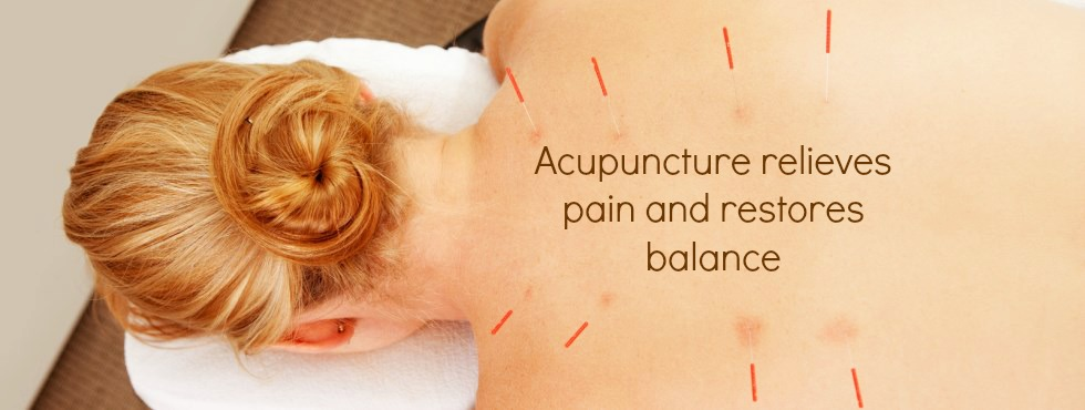 acupuncture relieves pain and restores balance picture