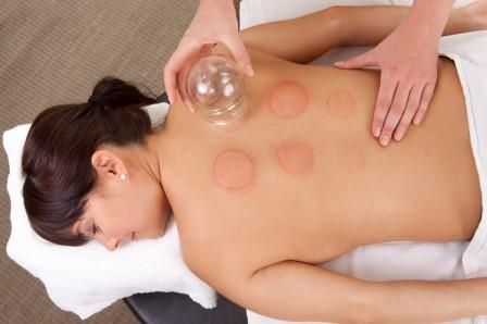 woman having cupping treatment