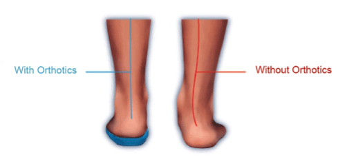 picture of the benefits of orthotics