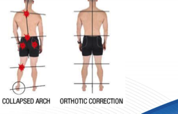 picture of orthotic correction