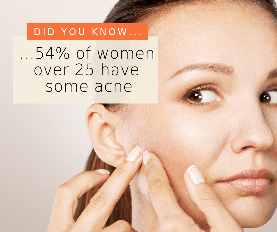 can a naturopath help with acne